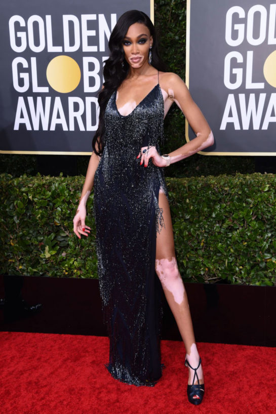 Winnie Harlow at 77th Annual Golden Globe Awards in Beverly Hills